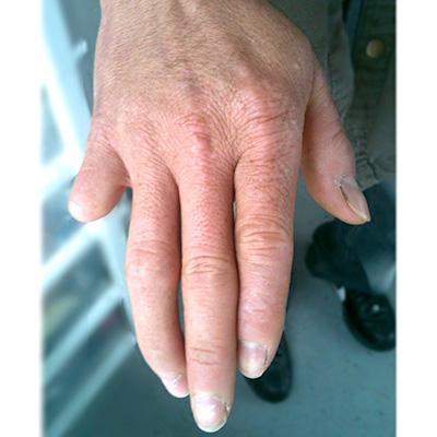 Finger Amputiert